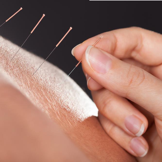 Moderne Akupunktur nach Boel (MAB)